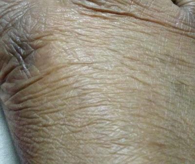 TCA Treated Skin