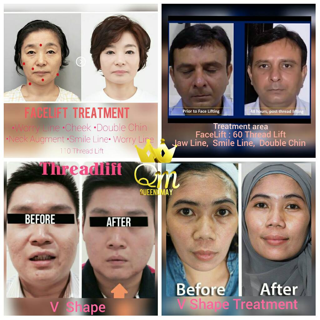Pro4u -Thread Lift Korea / Asia Aesthetic Training Course