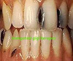 cara mengatasi gigi keropos dan hitam pada orang dewasa bagian depan secara  alami anak balita berlubang 1e7f1df721