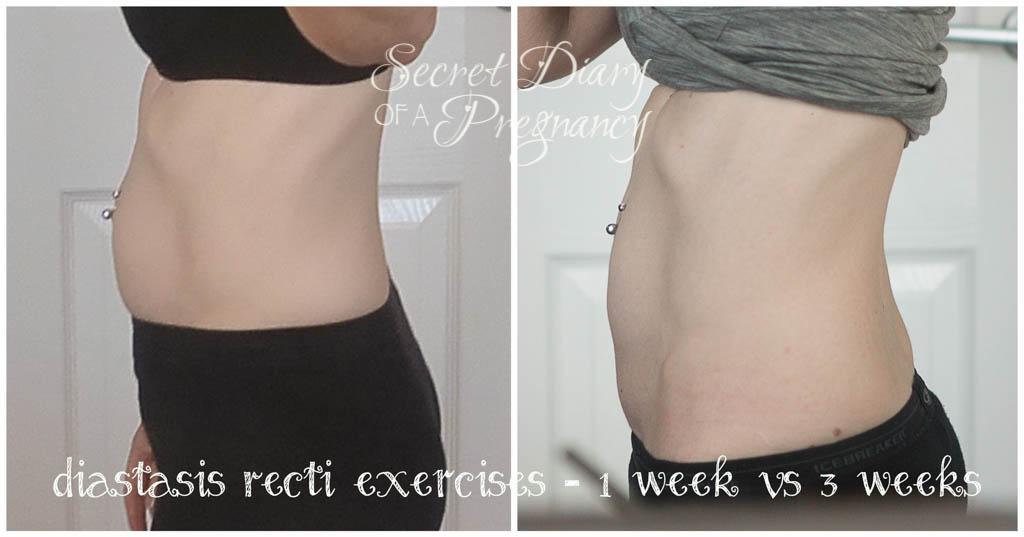 Diastasis Repair - 3 weeks in  Early Pregnancy Stomach 3 Weeks
