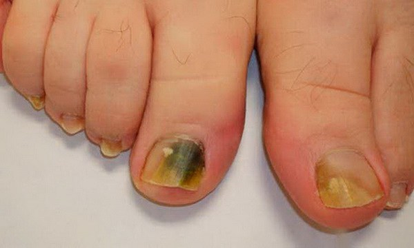Remedy With 3 Ingredients To Eliminate Toenail Fungus For Lifetime