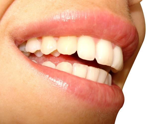 3 Cara mengobati Sakit Gigi