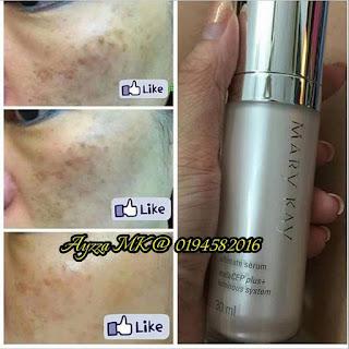 Skincare Jerawat Mary kay