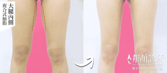 大腿縫-複合式抽脂-藝術體雕-鉛筆腿-韓妞-洪維志醫師-彤顏診所-整形外科-抽脂-大腿抽脂-IG-瘦大腿-大腿抽脂費用-抽脂推薦