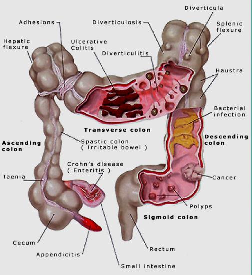 The Health Website : Bowel (Colon / Colorectal) Cancer
