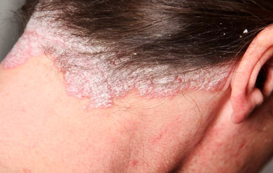How to get rid of psoriasis on your scalp