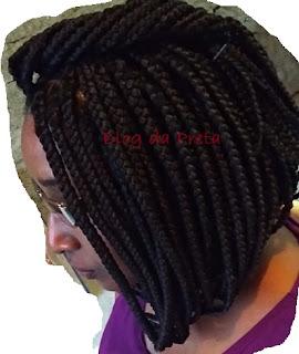 A coceira causada pelas tranças box braids