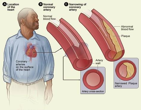 faktor penyebab penyakit jantung koroner