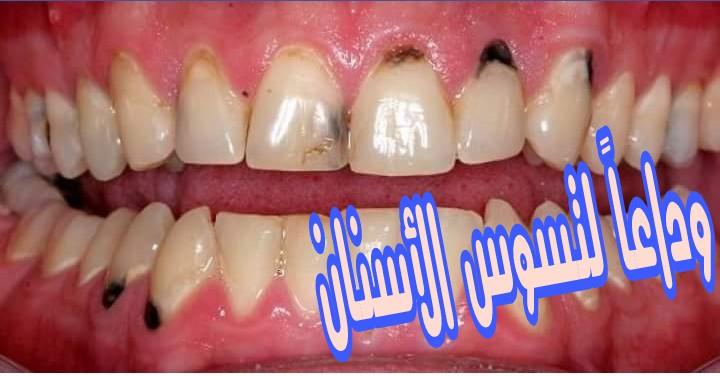 أسهل طريقة مذهلة للتخلص من آلالام وتسوس الأسنان لكم ولأطفالكم