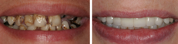 before after photo of smile design done by jamnagar dentist