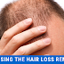Choosing the hair loss remedy; have no side effect and are very effective as well
