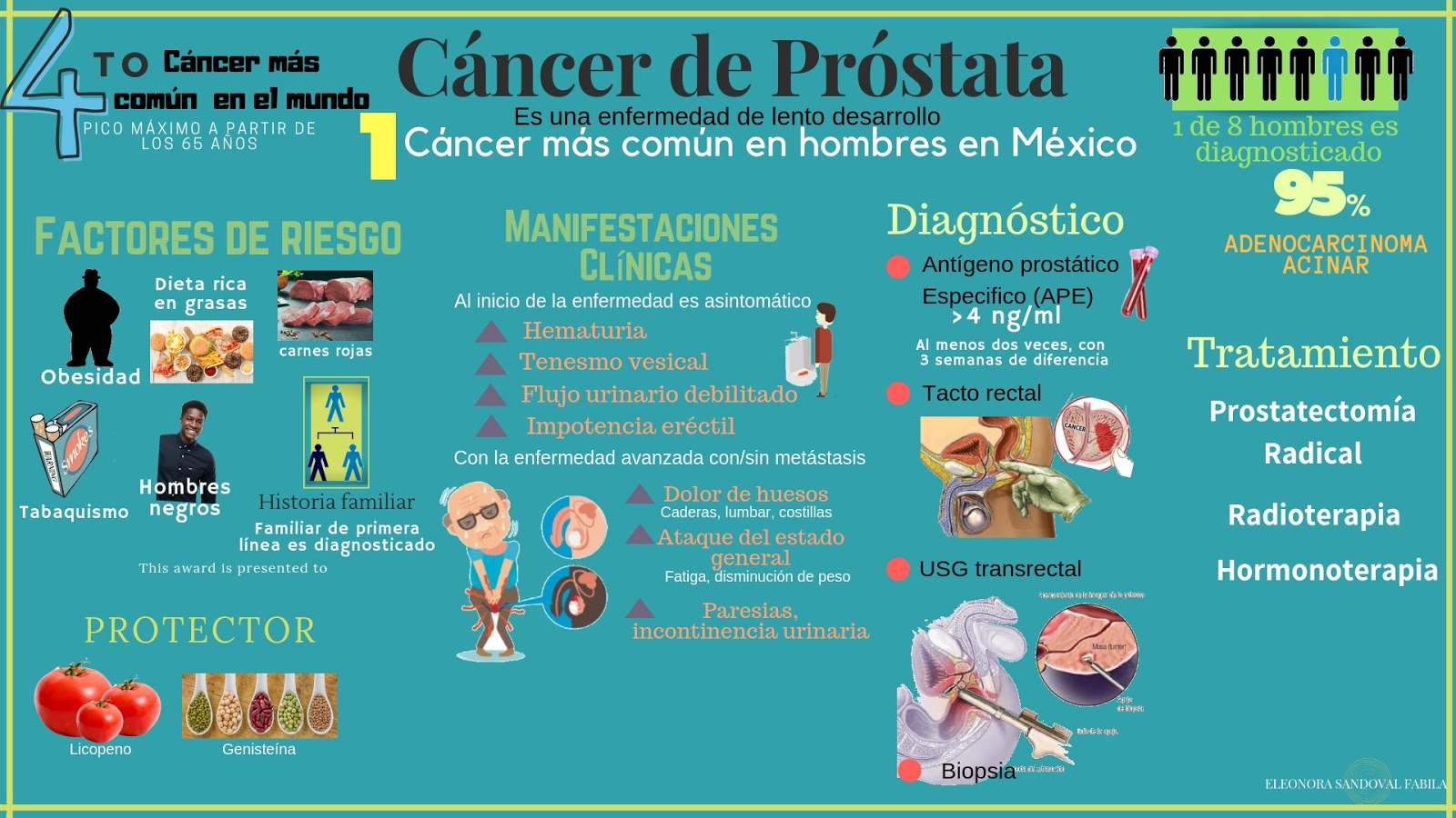 neoplasmas malignos de cáncer de próstata
