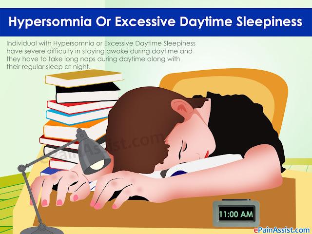 Kerap Mengantuk Siang Tanda Hypersomnia