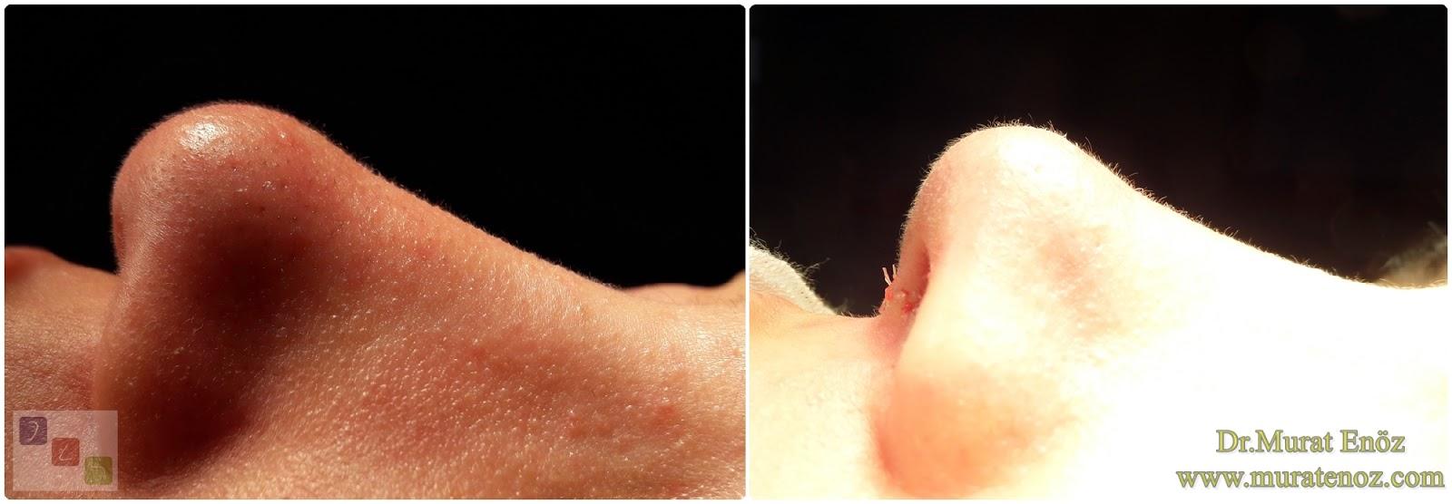 Açık teknik burun ucu estetiği, Burun ucu kaldırma, Burun kaldırma, Burun ucu operasyonu öncesi ve sonrası, Burun ucu düşüklüğü tedavisi, Burun ucu estetiği ameliyatı izle, Burun ucu estetiği öncesi ve sonrası görselleri, Açık teknik burun ucu operasyonu, Nose tip lifting in İstanbul, Nose tip plasty operation in İstanbul, Tip plasty in İstanbul, Nose tip reshaping in İstanbul, Nose tip surgery in Turkey, Open technique tip plasty operation in İstanbul, Burun ucu estetiği Bakırköy. Burun ucu küçültme, Burun ucu daraltma