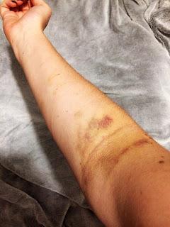 Oddawanie krwi - z czym to sie je?