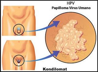 kutil kelamin, kutil, penyakit kutil kelamin, pantangan penyakit kutil kelamin, penderita kutil kelamin, Human Virus  Papiloma, HPV