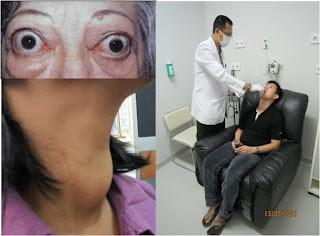 Dokter Nuklir: Terapi hipertiroid dengan iodium radioaktif.