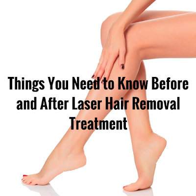 permanent facial hair removal