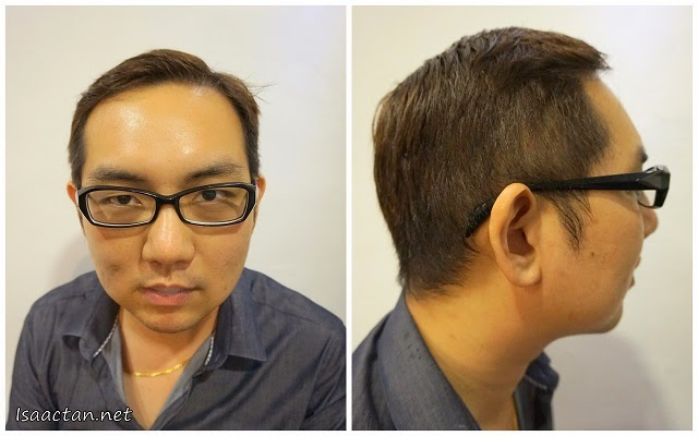 An immediate 'After Treatment' picture of my front and side profile after the first treatment of MesoLipo procedure