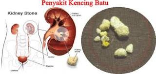 Gambar Obat batu ginjal di Magelang Jawa Tengah