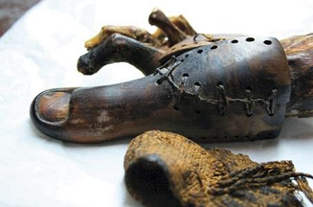 Dünyadaki İlk Protez Ayak Bulundu