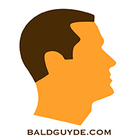 Male Pattern Baldness Stage 1 Hair Loss