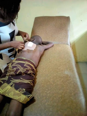 Photos: 12-year-old girl brutally flogged by her uncle in Delta State; doused with hot water then mutilated with razor blade