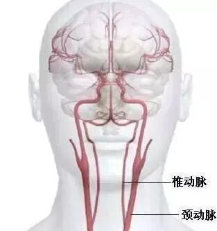 腦梗和腦溢血是怎麼發生的?(腦中風)