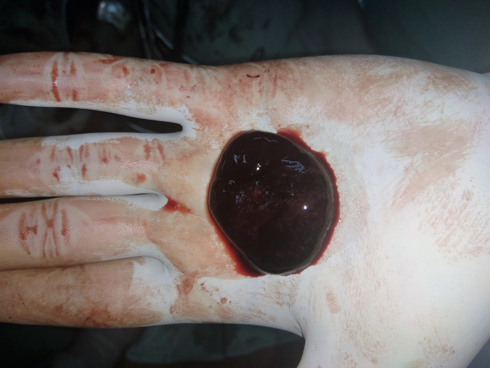 Chocolate Cyst of Ovary | World Surgery Forum