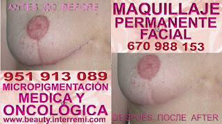 cáncer de mamas cicatrices Camuflaje cicatrices después de reduccion de mamas