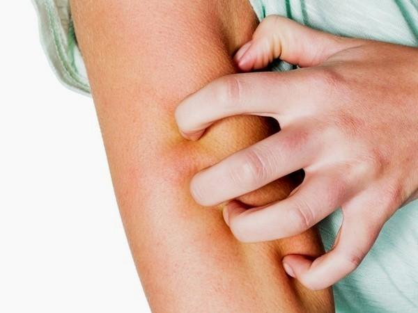 Kulit gatal akibat gigitan nyamuk