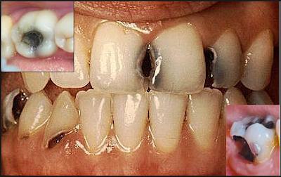 http://www.pusatmedik.org/2016/07/definisi-penyebab-dan-pengobatan-serta-gejala-klinis-hingga-perawatan-karies-gigi-menurut-ilmu-kedokteran.html