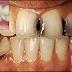 Definisi Penyebab Dan Pengobatan serta Gejala Klinis hingga Perawatan Karies Gigi Menurut Ilmu Kedokteran