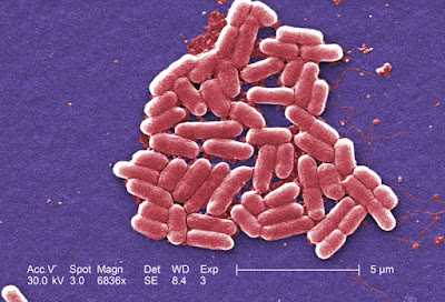 Escherichia coli, salah satu makhluk hidup bersel satu(uniselulet)