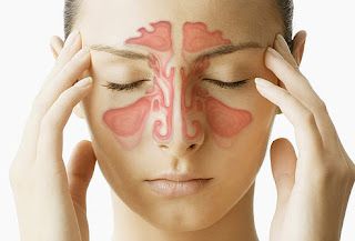 http://www.aumentclinic.com/sinus-surgery.php