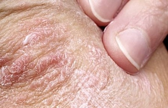 Tratamientos Caseros para Tratar la Psoriasis