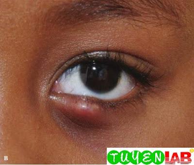 Close-up showing eyelid swelling