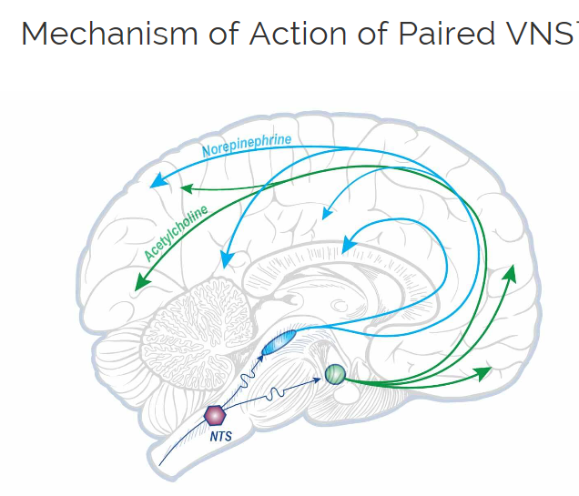 Epiphany: Transcutaneous Vagal Nerve Stimulation - a