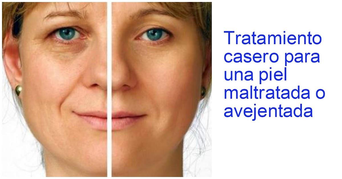La eccema varicosa el tratamiento la causa de la enfermedad
