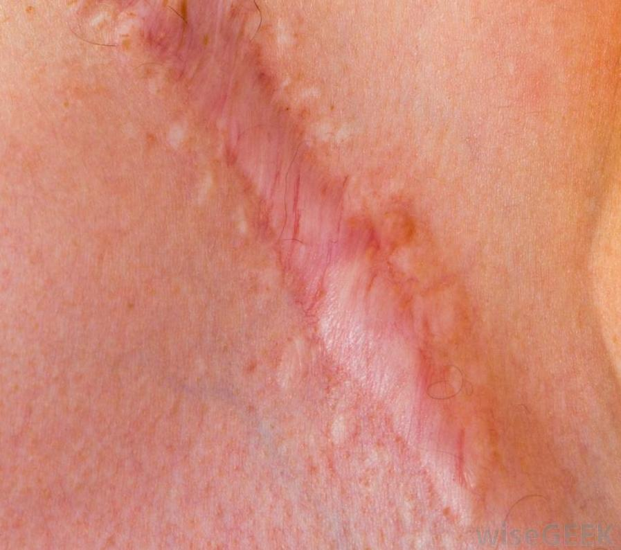 How Can I Get Rid of My Scars? - MediMiss