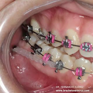 Tratamiento de ortodoncia con mini implantes