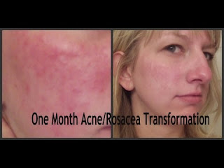 scarlet letters dealing with vascular rosacea and the rest