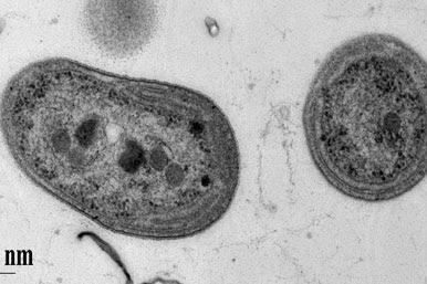 Pengelompokkan Bakteri Berdasarkan Kebutuhan Oksigen dan Cara Geraknya