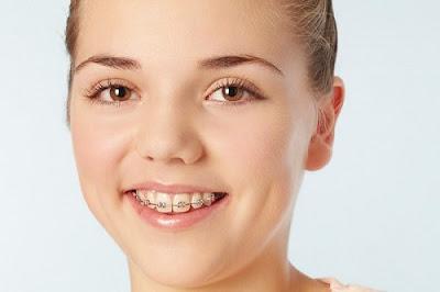 3 lý do nên bọc sứ thay vì niềng răng -2