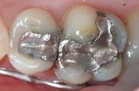Những tiêu chí phục hình răng sâu cần đảm bảo