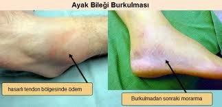 Ayak bileği burkulması belirtileri ve tedavisi
