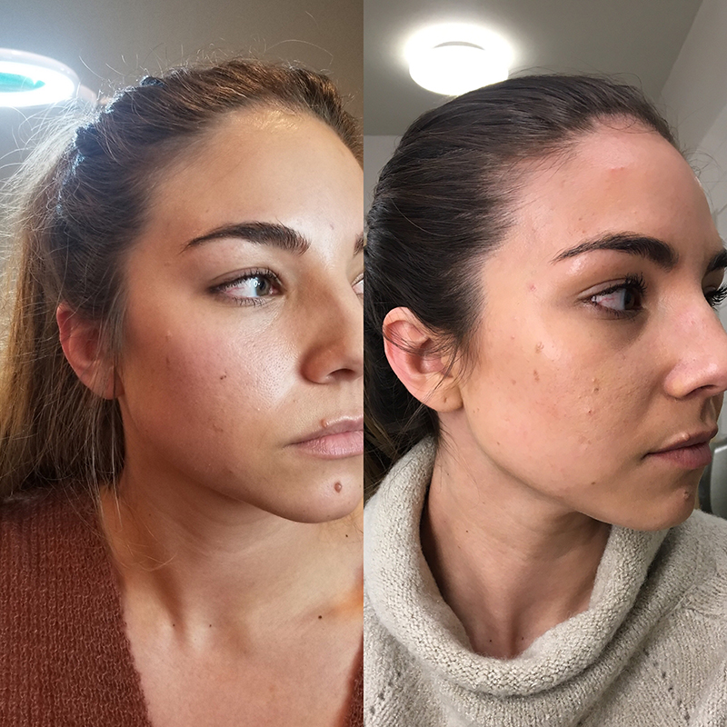 26-year-old received Botox injections, botox injections, preventative botox