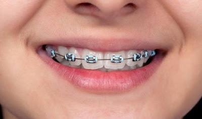 Alasan Memasang Kawat Gigi Yang Baik