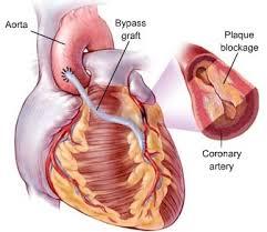 فوائد ذهبية في حماية القلب