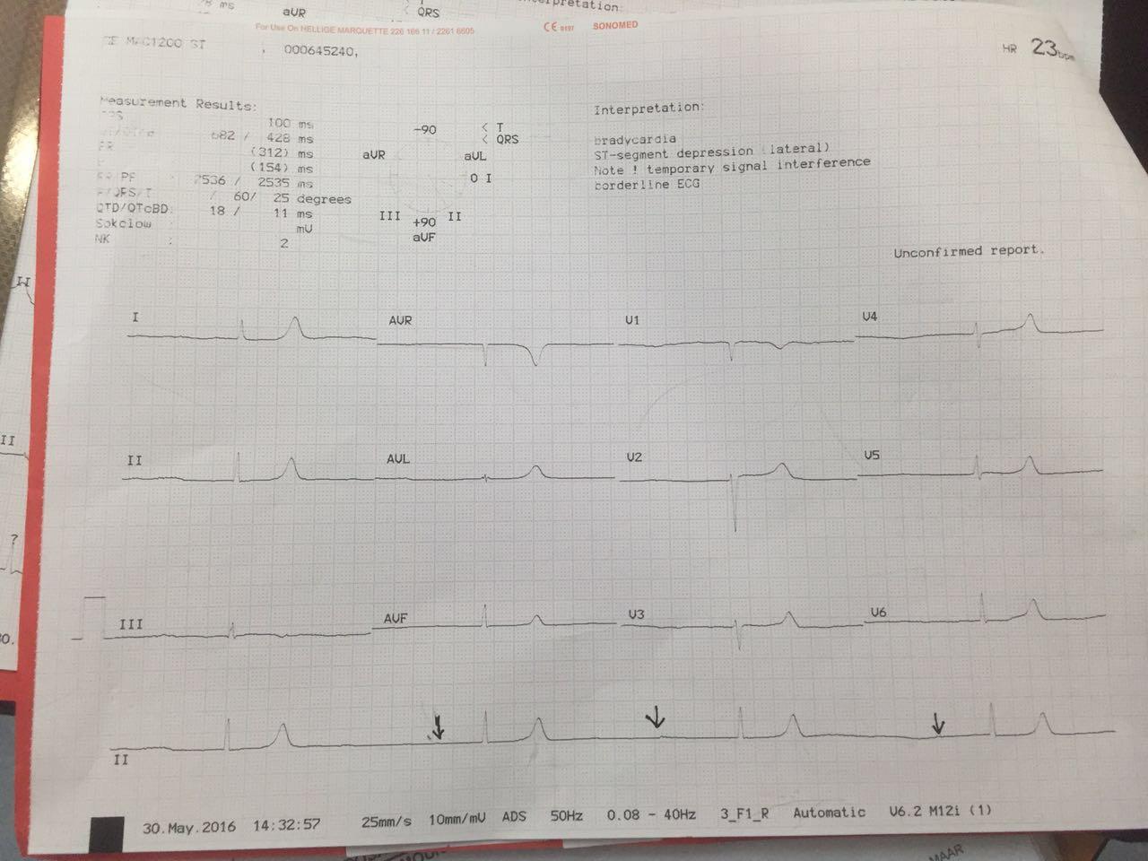 medical notes throughout the journey ecg scenario question ecg questions